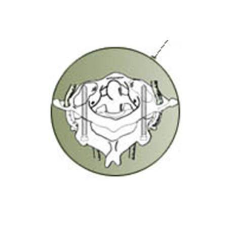cic group innesis peek cervical cage bk meditech usa